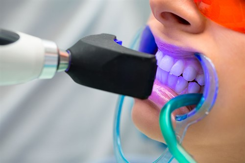 Clareamento -dental -laser -preco -2